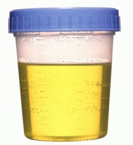 Urine sample in covered cup, close-up